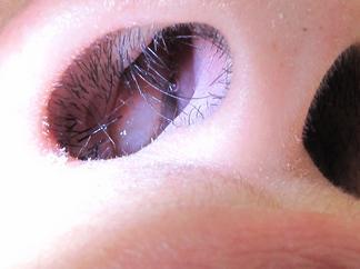 nasal-polyps-small
